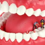 How a Root Canal can Save Your Damaged Tooth