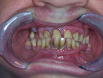 Extraction/dentures