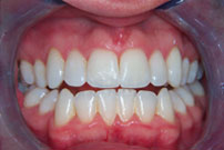 stained teeth image