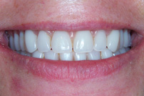 Mini Implant Retained Dentures